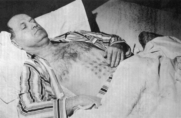 At Falcon Lake, Manitoba, Stephen Michalak, a Pole, approaches a landed UFO and receives a grid-pattern of burns on his chest